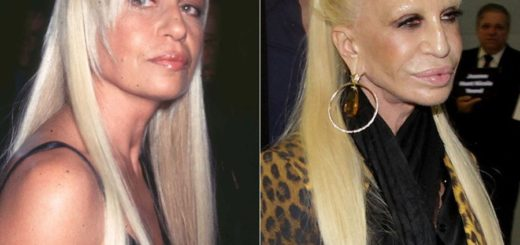 Donatella-Versace-before-and-after-plastic-surgery-06